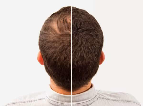 buy Best quality hair building fiber caboki hair fiber at best price in pakistan by shopse.pk